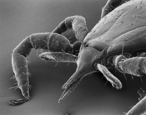 Microscopic view of a deer tick (Ixodes dammini) magnified about 90 times.